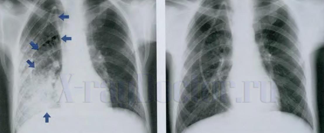 Как выглядит пневмония на снимке флюорографии — Простуда