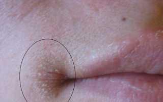 Простуда в уголках губ как лечить