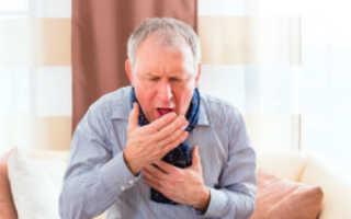 Затяжной кашель у взрослого