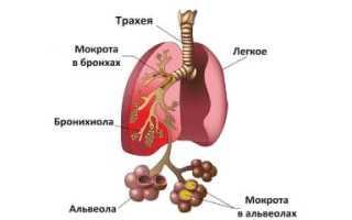 Как определить воспаление легких в домашних условиях