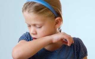 Собачий кашель как лечить у ребенка