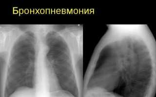 Бронхиальная пневмония у детей