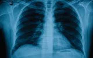Хламидийная пневмония