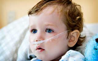 Виды пневмонии легких