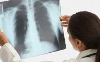 Как начинается пневмония у взрослых