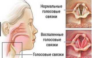 Чешется в горле и сухой кашель