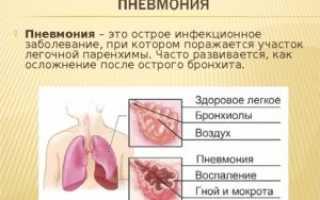 Вирусная пневмония лечение