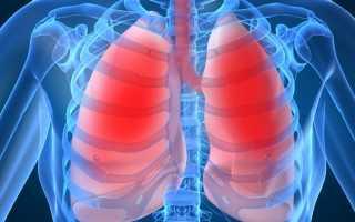 Острая пневмония симптомы