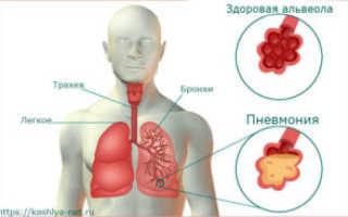 Какой кашель при воспалении легких