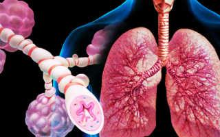 Атипичная пневмония симптомы