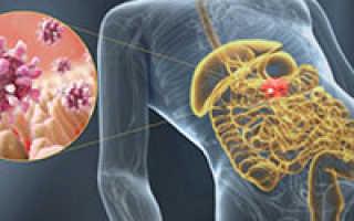 Желудочный грипп лечение