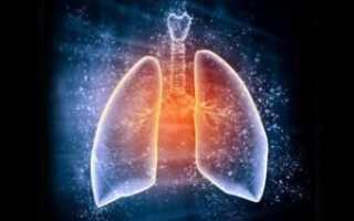 Как проявляется пневмония у взрослых