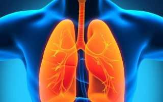 Воспаление легких лечение в домашних условиях