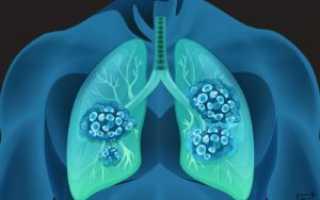 Сколько лечится пневмония у детей