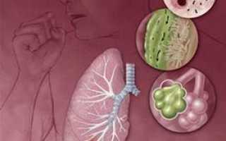 Заразно ли воспаление легких