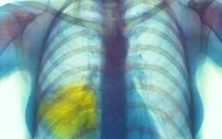 Передается ли воспаление легких