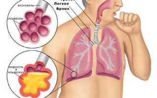 Как умирают от пневмонии