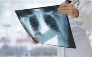 Пневмония средней доли правого легкого