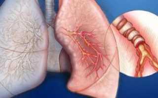 Бронхит пневмония