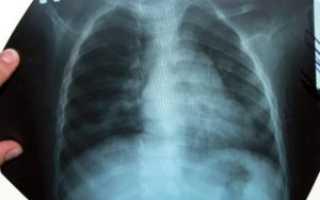 Чем опасна пневмония у детей