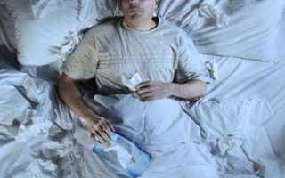2 Сторонняя пневмония
