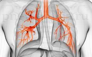 Правостороннее воспаление легких