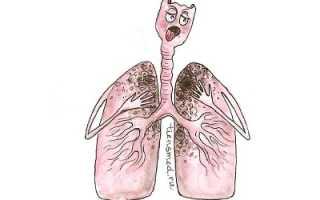 Как отличить туберкулез от пневмонии
