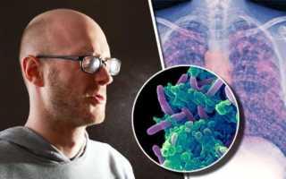 Какой кашель при туберкулезе