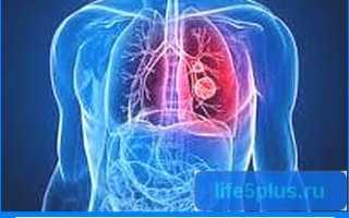 Пневмония это что за болезнь