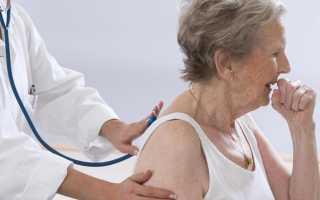 Длительный кашель с мокротой без температуры
