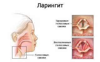 Сухой кашель и температура