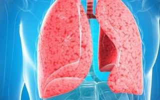 Признаки воспаления легких у взрослого симптомы