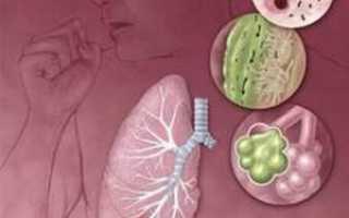 Можно ли курить при воспалении легких