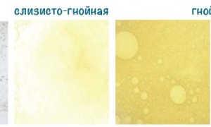 Цвет мокроты при бронхите