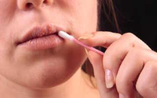 Чем намазать простуду на губе