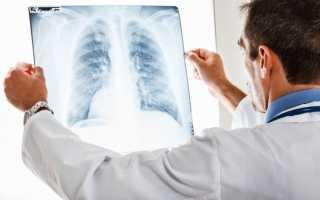 Как долго лечится пневмония