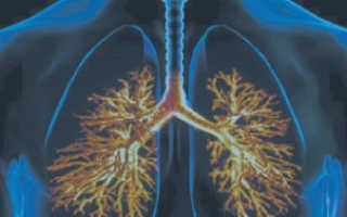 Лечение внебольничной пневмонии