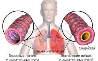 Курение при пневмонии у взрослых
