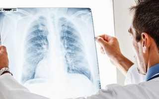 Плевральная пневмония