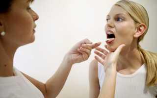 Болит горло кашель насморк температуры нет