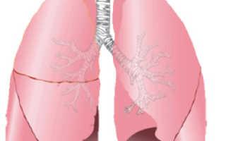 Микоплазма пневмония симптомы