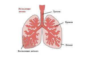 Как понять что у тебя воспаление легких